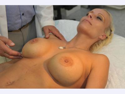 plastická chirurgie - plastika prsou pomocí prsních implantátů