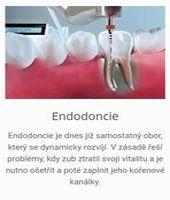 zubní-klinika-Plzeň-endodoncie